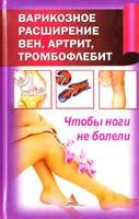 Васильева Я. Варикозное расширение вен, артрит, тромбофлебит. Чтобы ноги не болели 978-617-594-374-8